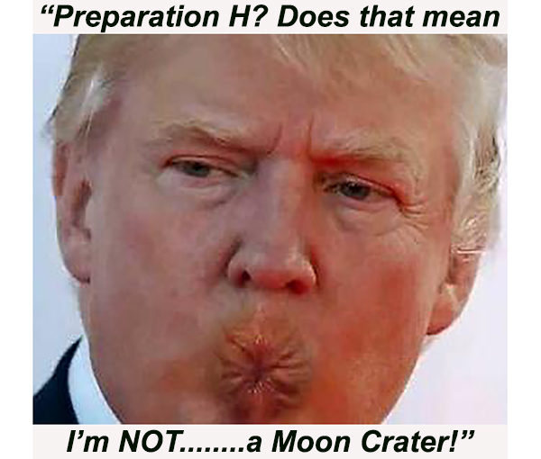 """If I had written that joke, I would have written, """" Well, yes, it's called PREPARATION H, you fucking pain in the Ass"""